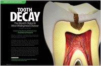 tooth decay in elkin, nc