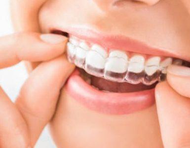 cosmetic-dentistry-procedure
