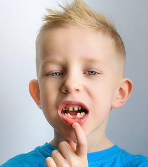 traumatic dental injuries in elkin, NC